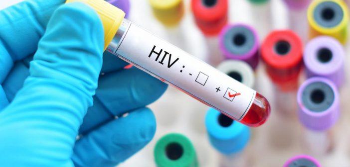 Глазгов и Клајд во Шкотска со пораст на преваленцата на ХИВ меѓу лицата кои инјектираат дроги